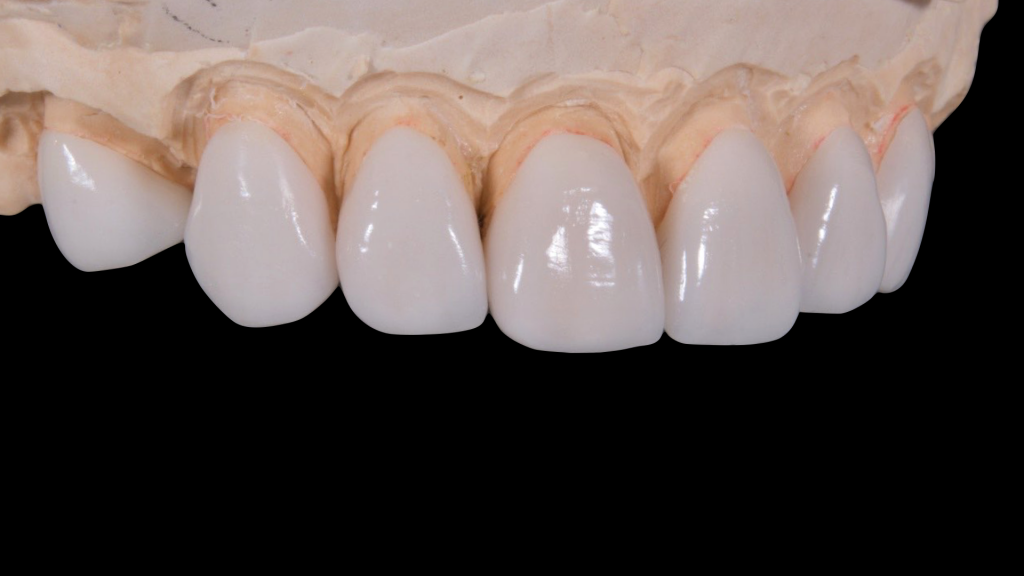 Veneers & Composite Treatment